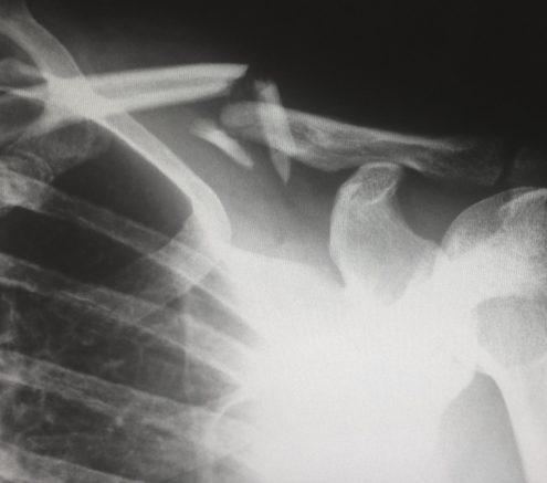 X ray of broken collar bone